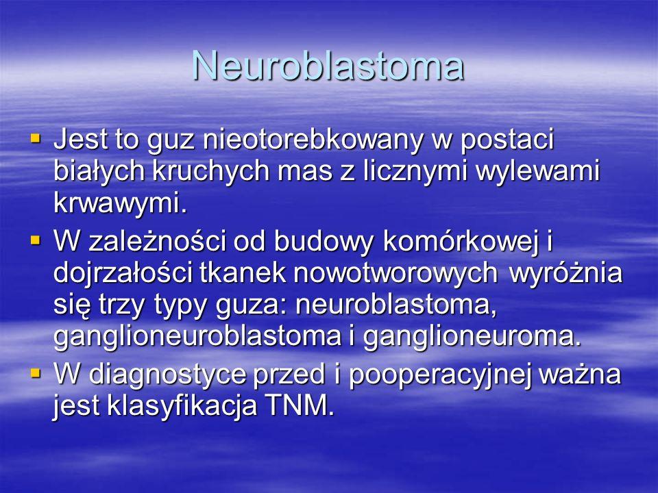 Neuroblastoma  Jest to guz nieotorebkowany w postaci białych kruchych mas z licznymi wylewami krwawymi.  W zależności od budowy komórkowej i dojrzał