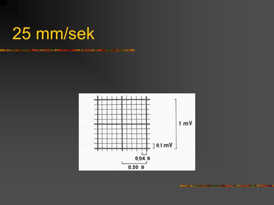 Rytm zatokowy Dodatnie załamki P: I, II, (V6) Ujemne załamki P: aVR Niemiarowy: odstępy P-P Przyśpieszony: >100/min Zwolniony: <55-60/min Odprowadzenia Kończynowe: I, II, III, aVR, aVL, aVF, Przedsercowe: V1, V2-V4, V5-V6