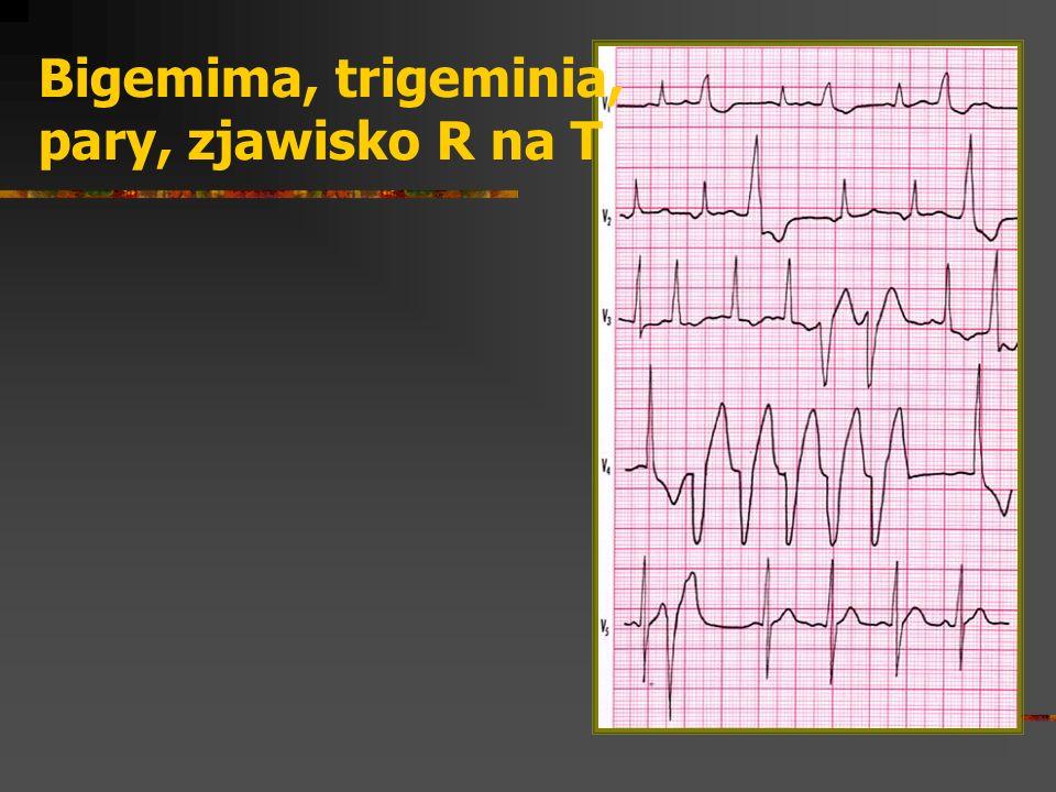 Bigemima, trigeminia, pary, zjawisko R na T