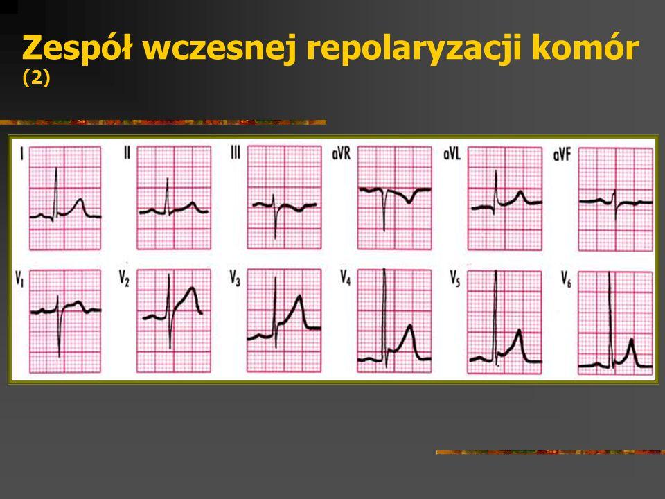 Zespół wczesnej repolaryzacji komór (2)