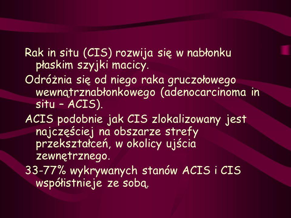 Rak in situ (CIS) rozwija się w nabłonku płaskim szyjki macicy. Odróżnia się od niego raka gruczołowego wewnątrznabłonkowego (adenocarcinoma in situ –
