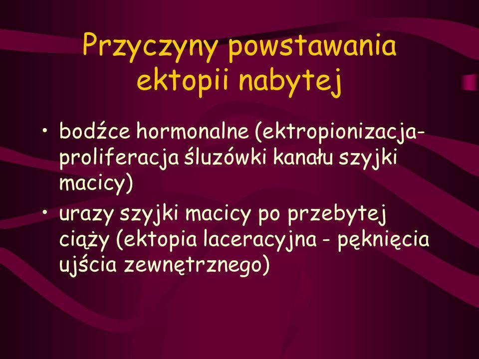 Przyczyny powstawania ektopii nabytej bodźce hormonalne (ektropionizacja- proliferacja śluzówki kanału szyjki macicy) urazy szyjki macicy po przebytej