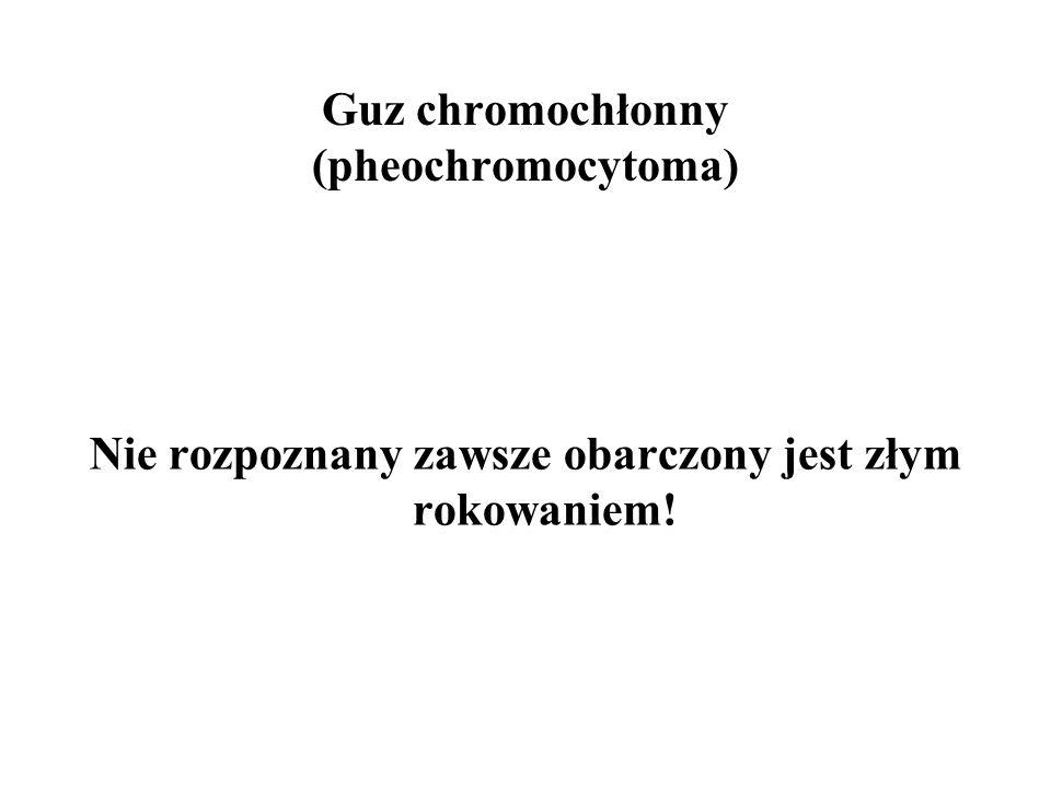 Guz chromochłonny (pheochromocytoma) Nie rozpoznany zawsze obarczony jest złym rokowaniem!