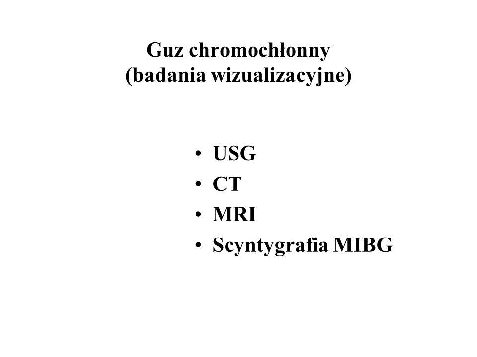 Guz chromochłonny (badania wizualizacyjne) USG CT MRI Scyntygrafia MIBG