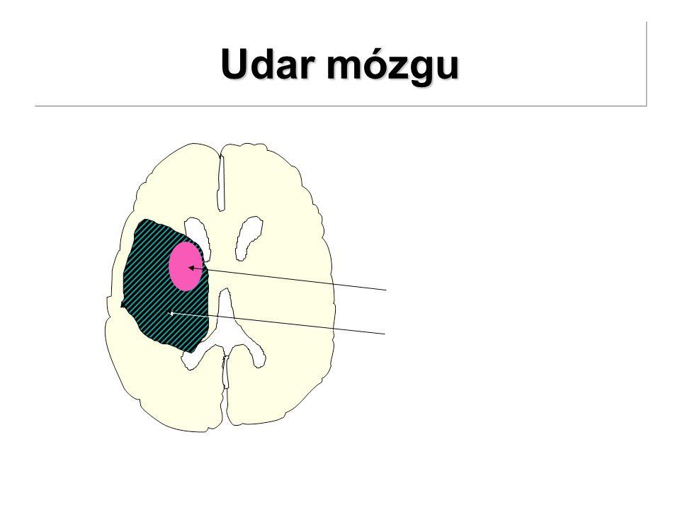 Udar mózgu początek martwica Ischemiczna penumbra