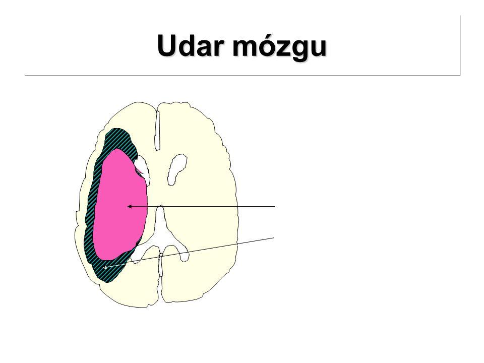 Udar mózgu 24 godziny martwica Ischemiczna penumbra