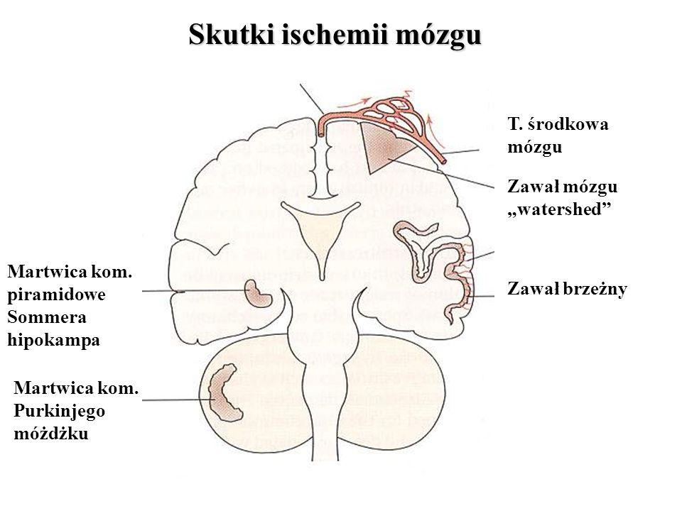 """Zawał mózgu """"watershed Zawał brzeżny T. środkowa mózgu Martwica kom."""