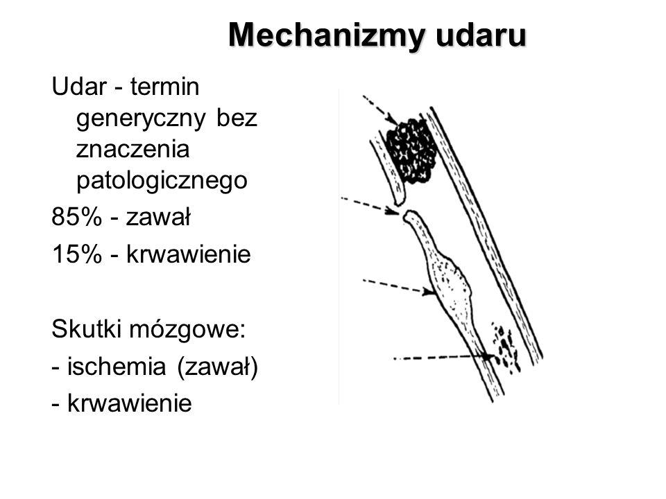 Mechanizmy udaru Udar - termin generyczny bez znaczenia patologicznego 85% - zawał 15% - krwawienie Skutki mózgowe: - ischemia (zawał) - krwawienie