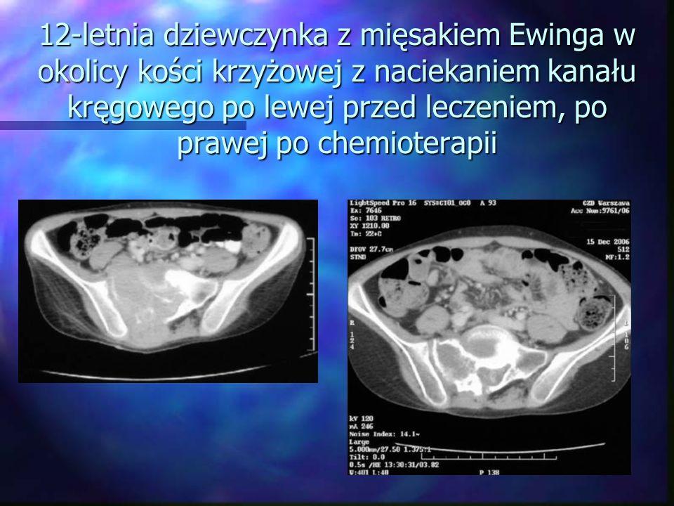 12-letnia dziewczynka z mięsakiem Ewinga w okolicy kości krzyżowej z naciekaniem kanału kręgowego po lewej przed leczeniem, po prawej po chemioterapii
