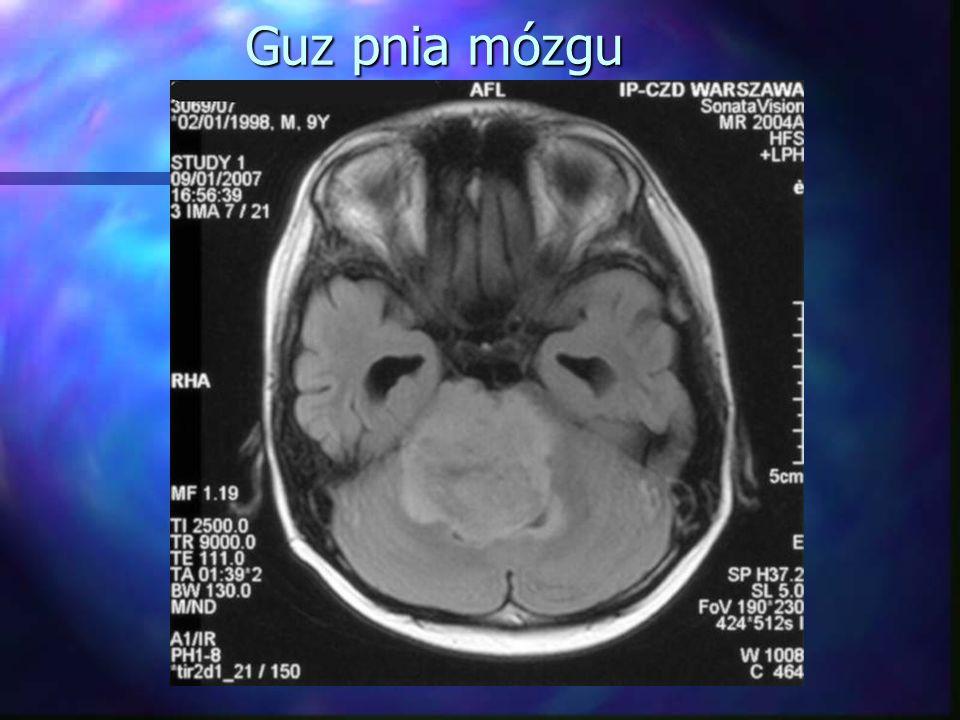"""Medulloblastoma (rdzeniak płodowy) Guz móżdżku, w którym występuje rozsiew drogą płynu mózgowo- rdzeniowego (30%)Guz móżdżku, w którym występuje rozsiew drogą płynu mózgowo- rdzeniowego (30%) Leczenie:Leczenie: Chirurgia: usunięcie ogniska pierwotnegoChirurgia: usunięcie ogniska pierwotnego ChemioterapiaChemioterapia Radioterapia: oś mózgowo-rdzeniowa + """"boost na okolicę ogniska pierwotnego:Radioterapia: oś mózgowo-rdzeniowa + """"boost na okolicę ogniska pierwotnego: W """"High Risk : w I etapie oś mózgowo-rdzeniowa 35 Gy, ognisko pierwotne 55 Gy, ogniska przerzutowe w rdzeniu 45 GyW """"High Risk : w I etapie oś mózgowo-rdzeniowa 35 Gy, ognisko pierwotne 55 Gy, ogniska przerzutowe w rdzeniu 45 Gy W """"Standard Risk : w I etapie obniżenie dawki na oś mózgowo- rdzeniową do 25 Gy, w II etapie na ognisko pierwotne 55 Gy.W """"Standard Risk : w I etapie obniżenie dawki na oś mózgowo- rdzeniową do 25 Gy, w II etapie na ognisko pierwotne 55 Gy."""