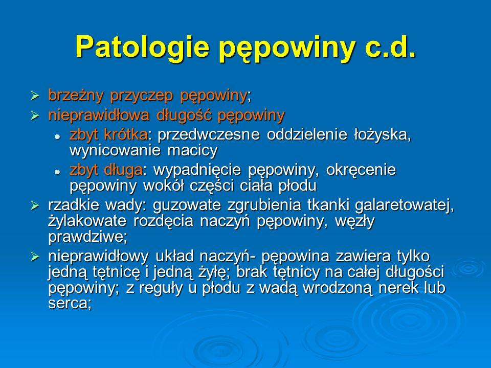 Patologie pępowiny c.d.