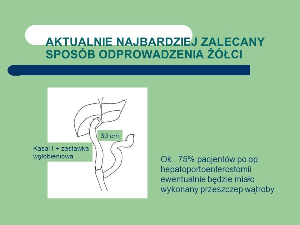 AKTUALNIE NAJBARDZIEJ ZALECANY SPOSÓB ODPROWADZENIA ŻÓŁCI Kasai I + zastawka wgłobieniowa 30 cm Ok.. 75% pacjentów po op. hepatoportoenterostomii ewen