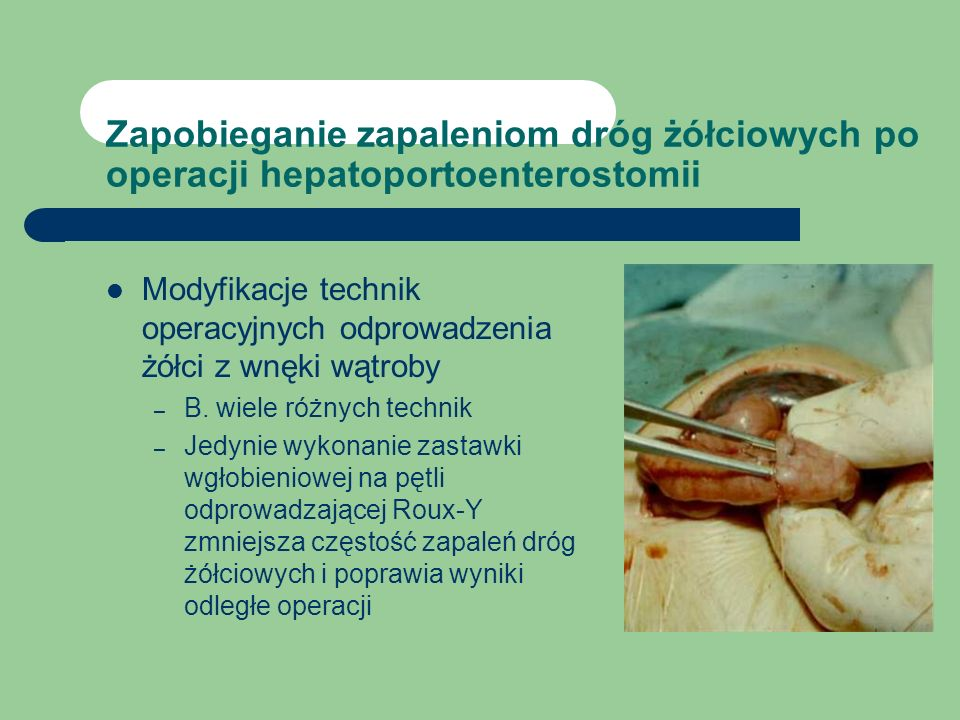 Zapobieganie zapaleniom dróg żółciowych po operacji hepatoportoenterostomii Modyfikacje technik operacyjnych odprowadzenia żółci z wnęki wątroby – B.