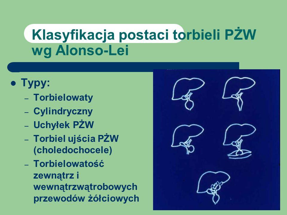 Klasyfikacja postaci torbieli PŻW wg Alonso-Lei Typy: – Torbielowaty – Cylindryczny – Uchyłek PŻW – Torbiel ujścia PŻW (choledochocele) – Torbielowato