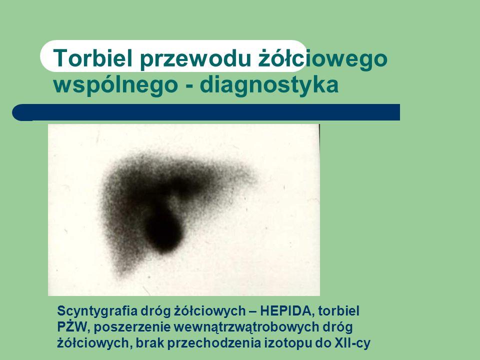 Torbiel przewodu żółciowego wspólnego - diagnostyka Scyntygrafia dróg żółciowych – HEPIDA, torbiel PŻW, poszerzenie wewnątrzwątrobowych dróg żółciowyc