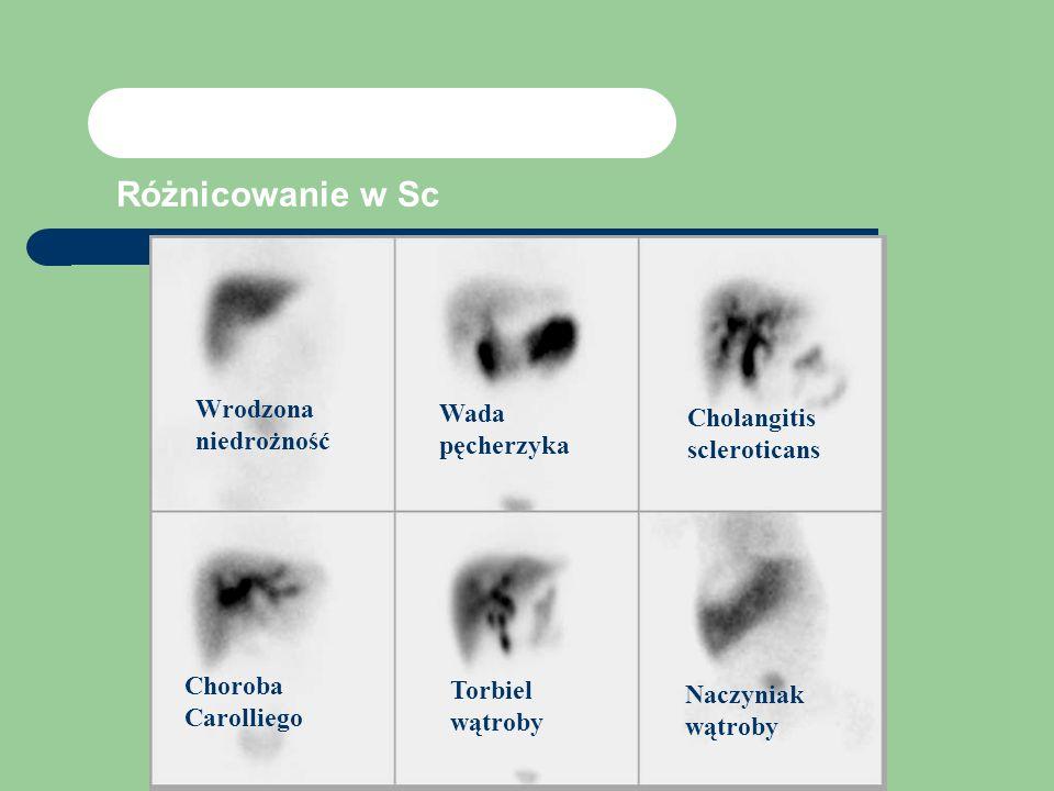 Różnicowanie w Sc Wrodzona niedrożność Wada pęcherzyka Cholangitis scleroticans Choroba Carolliego Torbiel wątroby Naczyniak wątroby