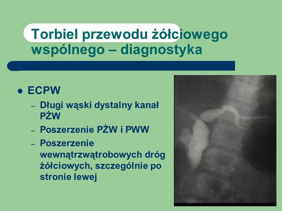 Torbiel przewodu żółciowego wspólnego – diagnostyka ECPW – Długi wąski dystalny kanał PŻW – Poszerzenie PŻW i PWW – Poszerzenie wewnątrzwątrobowych dr