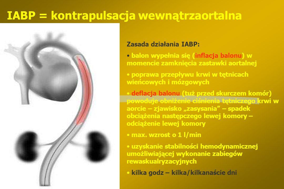 Wspomaganie lewej komory w zabiegach PCI §IABP - kontrapulsacja wewnątrzaortalna przy EF < 30%, w niestabilnej dławicy, w AMI §przezskórne krążenie po