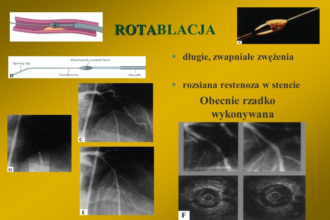 Wskazania do koronaroplastyki Dławica u chorych po pomostowaniu tętnic wieńcowych 1.