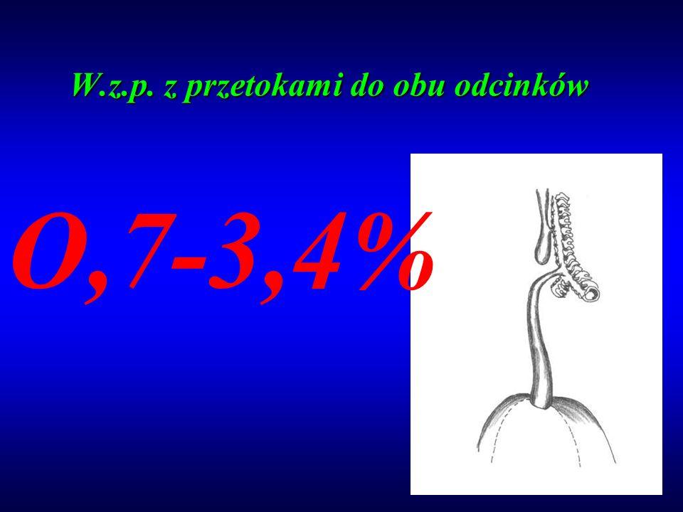 W.z.p. z przetokami do obu odcinków O,7-3,4%