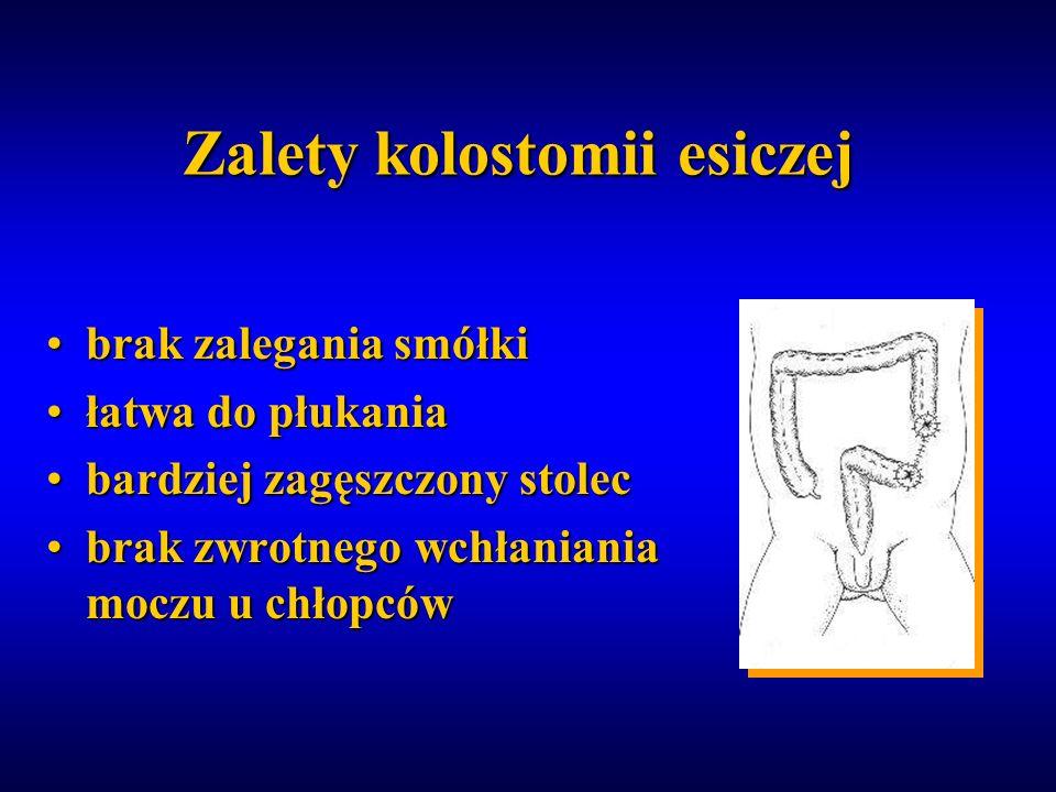 Zalety kolostomii esiczej brak zalegania smółkibrak zalegania smółki łatwa do płukaniałatwa do płukania bardziej zagęszczony stolecbardziej zagęszczon