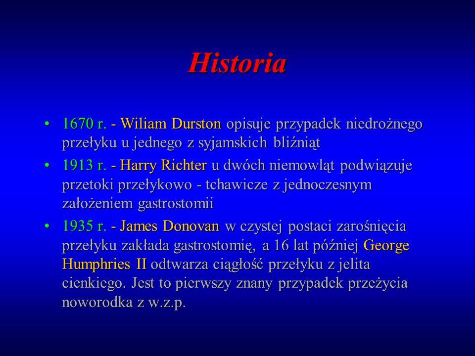 Historia 1670 r. - Wiliam Durston opisuje przypadek niedrożnego przełyku u jednego z syjamskich bliźniąt1670 r. - Wiliam Durston opisuje przypadek nie
