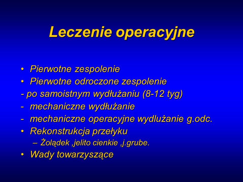Leczenie operacyjne Pierwotne zespoleniePierwotne zespolenie Pierwotne odroczone zespoleniePierwotne odroczone zespolenie - po samoistnym wydłużaniu (