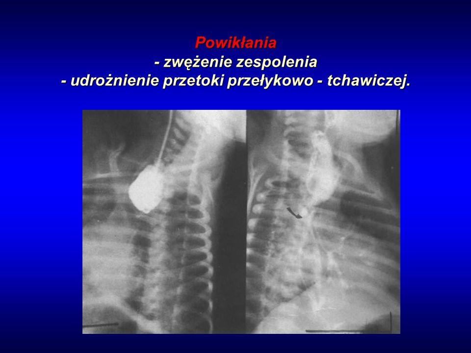 Powikłania - zwężenie zespolenia - udrożnienie przetoki przełykowo - tchawiczej.