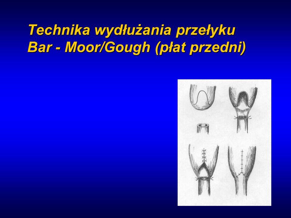 Technika wydłużania przełyku Bar - Moor/Gough (płat przedni)