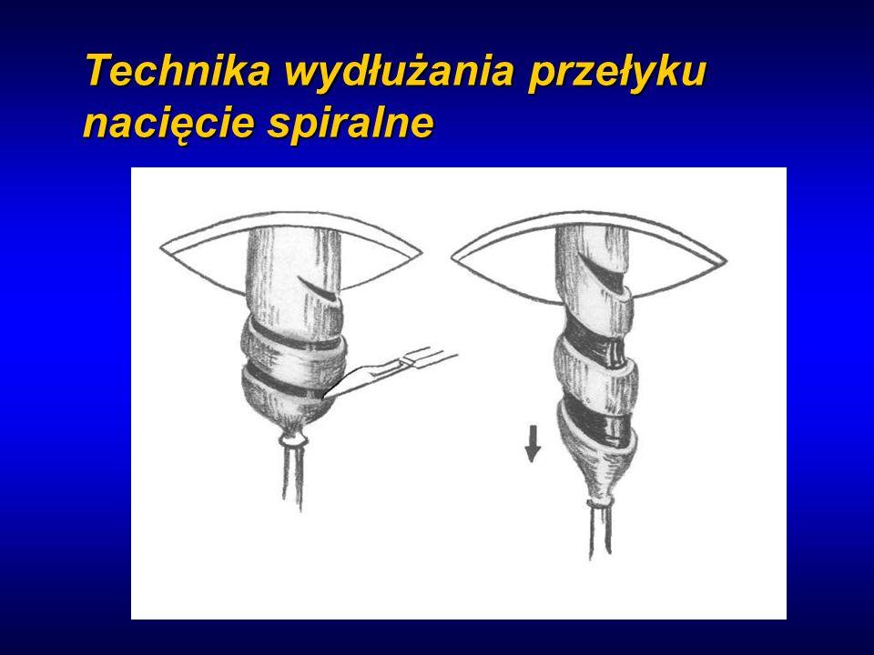 Technika wydłużania przełyku nacięcie spiralne