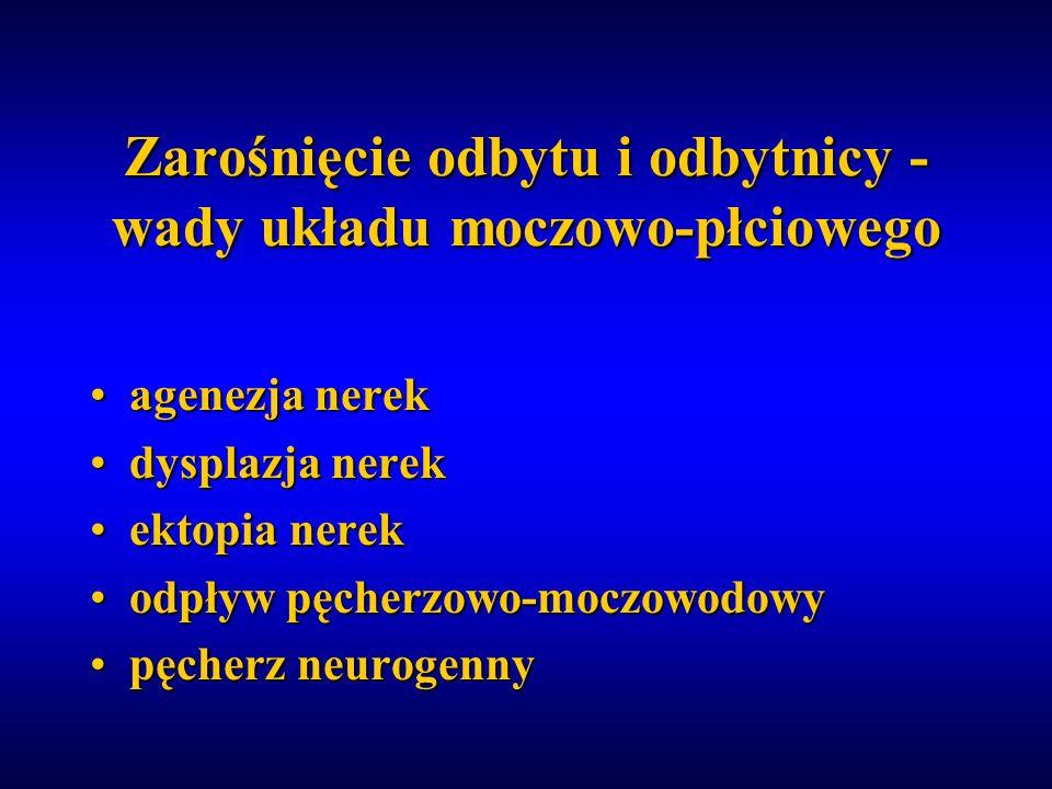 Zarośnięcie odbytu i odbytnicy - wady układu moczowo-płciowego agenezja nerekagenezja nerek dysplazja nerekdysplazja nerek ektopia nerekektopia nerek