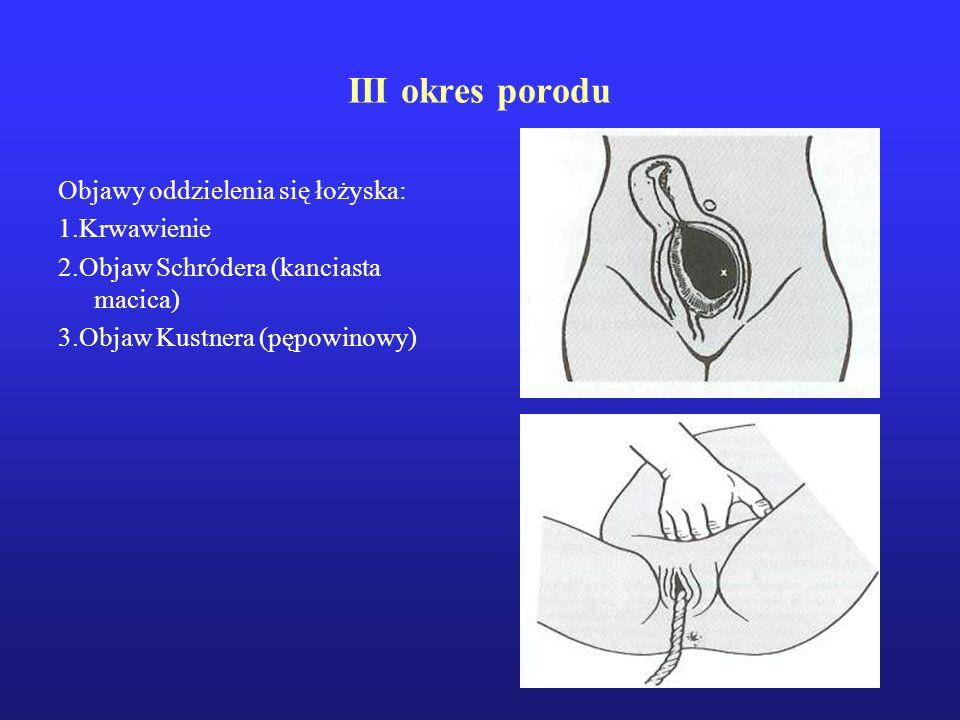 III okres porodu Objawy oddzielenia się łożyska: 1.Krwawienie 2.Objaw Schródera (kanciasta macica) 3.Objaw Kustnera (pępowinowy)