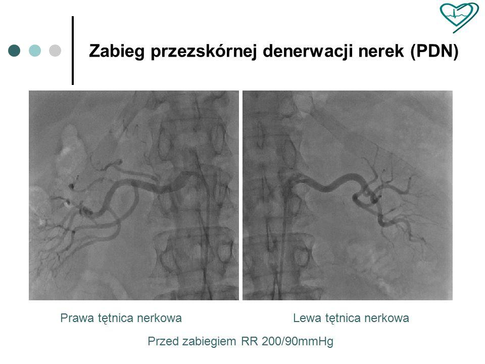 Prawa tętnica nerkowa Zabieg przezskórnej denerwacji nerek (PDN) Przed zabiegiem RR 200/90mmHg Lewa tętnica nerkowa