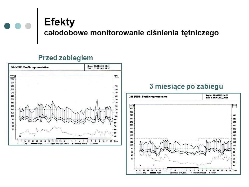 Efekty całodobowe monitorowanie ciśnienia tętniczego Przed zabiegiem 3 miesiące po zabiegu