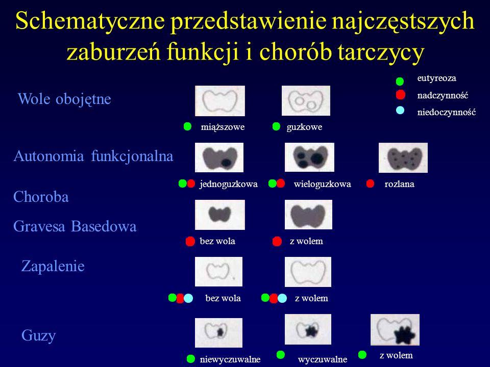 Terapia strontem ( 89 SR ) 89 SR: T1/2 = 50,6 dnia, energia promieniowania - 1,46 MeV, rodzaj promieniowania: ß -, radioizotop generatorowy.