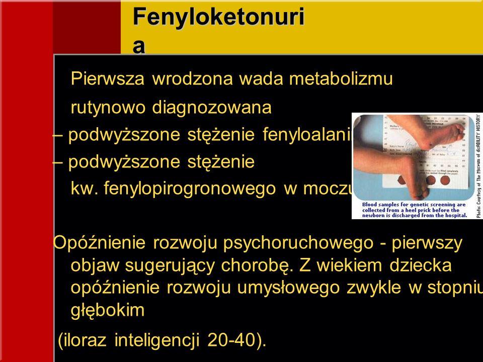 Fenyloketonuri a Pierwsza wrodzona wada metabolizmu rutynowo diagnozowana – podwyższone stężenie fenyloalaniny – podwyższone stężenie kw. fenylopirogr