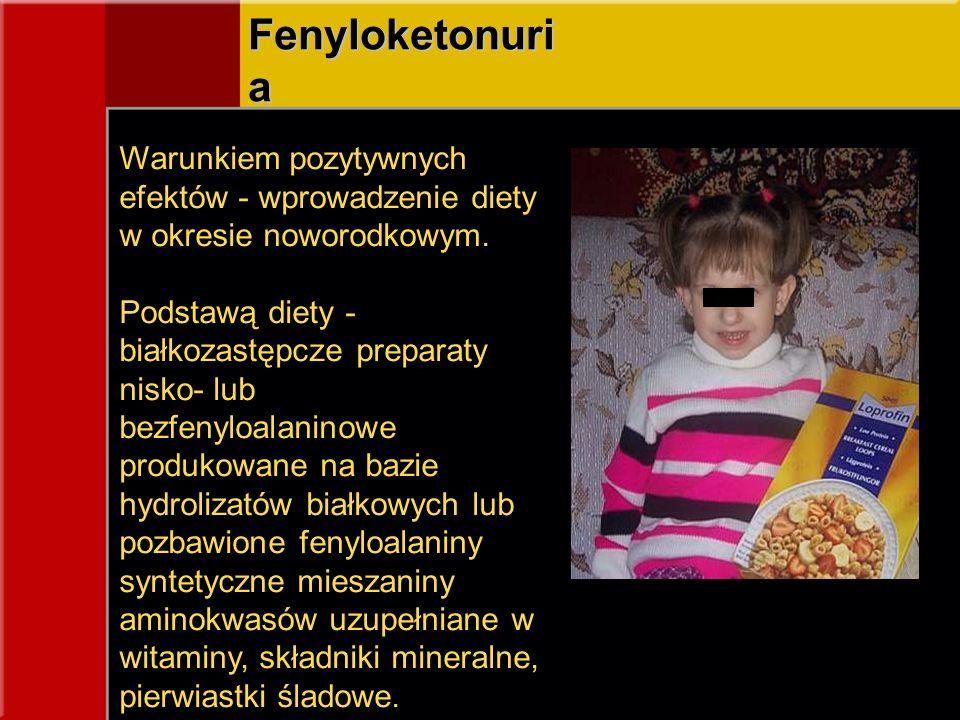 Fenyloketonuri a Warunkiem pozytywnych efektów - wprowadzenie diety w okresie noworodkowym. Podstawą diety - białkozastępcze preparaty nisko- lub bezf