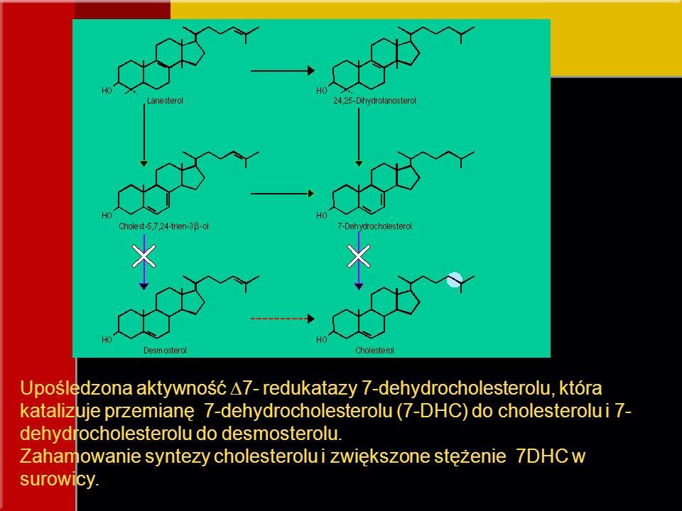 Upośledzona aktywność  7- redukatazy 7-dehydrocholesterolu, która katalizuje przemianę 7-dehydrocholesterolu (7-DHC) do cholesterolu i 7- dehydrochol