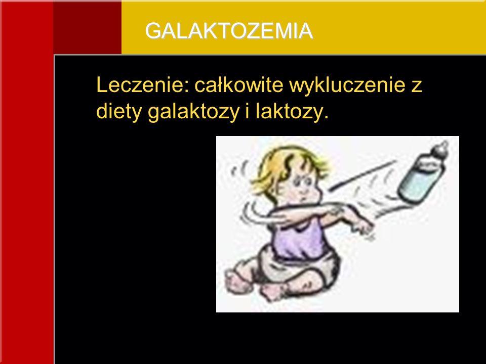 Leczenie: całkowite wykluczenie z diety galaktozy i laktozy.GALAKTOZEMIA