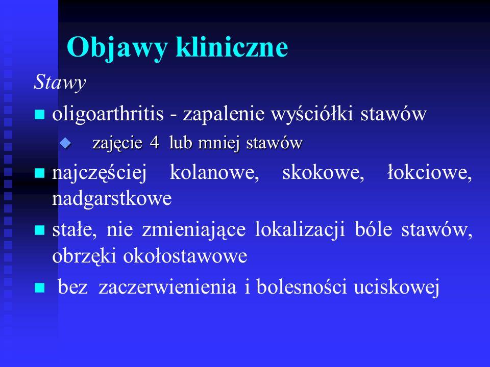 Objawy kliniczne Stawy n n oligoarthritis - zapalenie wyściółki stawów u zajęcie 4 lub mniej stawów n n najczęściej kolanowe, skokowe, łokciowe, nadga