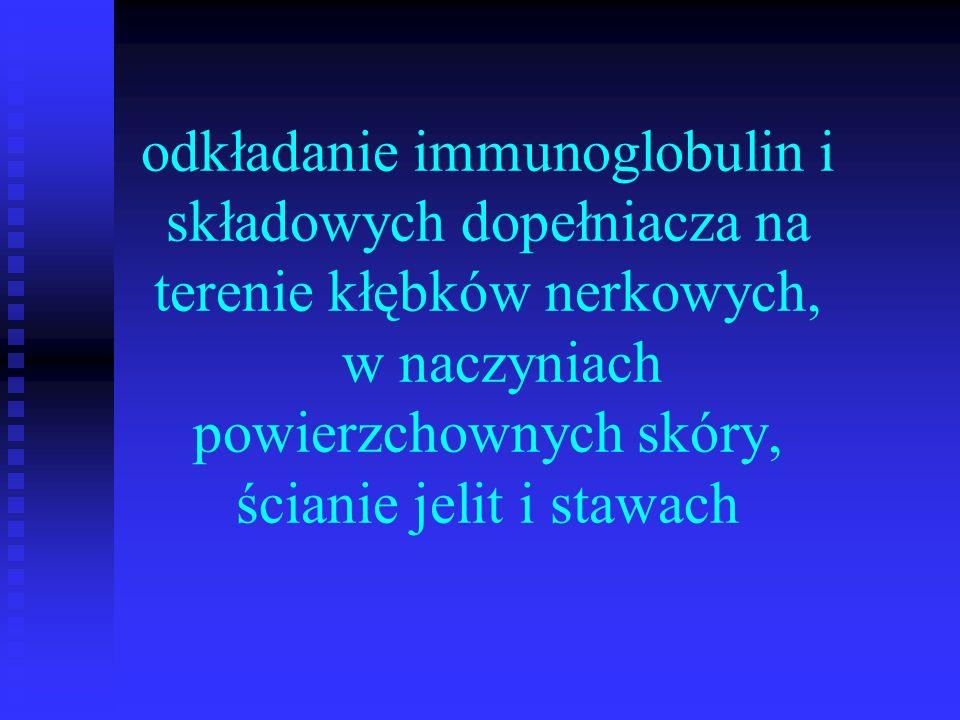 Leczenie Schyłkowa niewydolność nerek u dializy u przeszczep nerki ze zwłok min po 6-12 m.-cach remisji ze zwłok min po 6-12 m.-cach remisji