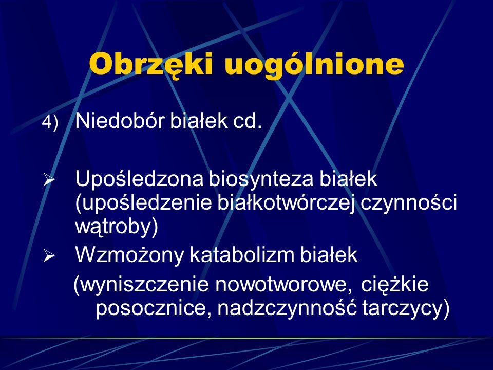Obrzęki uogólnione 4) Niedobór białek cd.  Upośledzona biosynteza białek (upośledzenie białkotwórczej czynności wątroby)  Wzmożony katabolizm białek