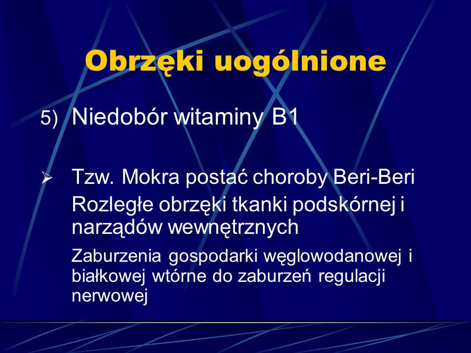 Obrzęki uogólnione 5) Niedobór witaminy B1  Tzw. Mokra postać choroby Beri-Beri Rozległe obrzęki tkanki podskórnej i narządów wewnętrznych Zaburzenia
