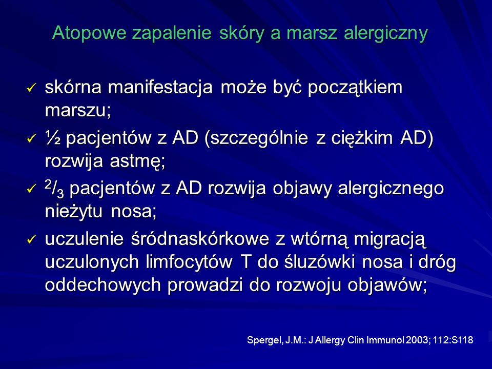 Atopowe zapalenie skóry a marsz alergiczny skórna manifestacja może być początkiem marszu; skórna manifestacja może być początkiem marszu; ½ pacjentów z AD (szczególnie z ciężkim AD) rozwija astmę; ½ pacjentów z AD (szczególnie z ciężkim AD) rozwija astmę; 2 / 3 pacjentów z AD rozwija objawy alergicznego nieżytu nosa; 2 / 3 pacjentów z AD rozwija objawy alergicznego nieżytu nosa; uczulenie śródnaskórkowe z wtórną migracją uczulonych limfocytów T do śluzówki nosa i dróg oddechowych prowadzi do rozwoju objawów; uczulenie śródnaskórkowe z wtórną migracją uczulonych limfocytów T do śluzówki nosa i dróg oddechowych prowadzi do rozwoju objawów; Spergel, J.M.: J Allergy Clin Immunol 2003; 112:S118