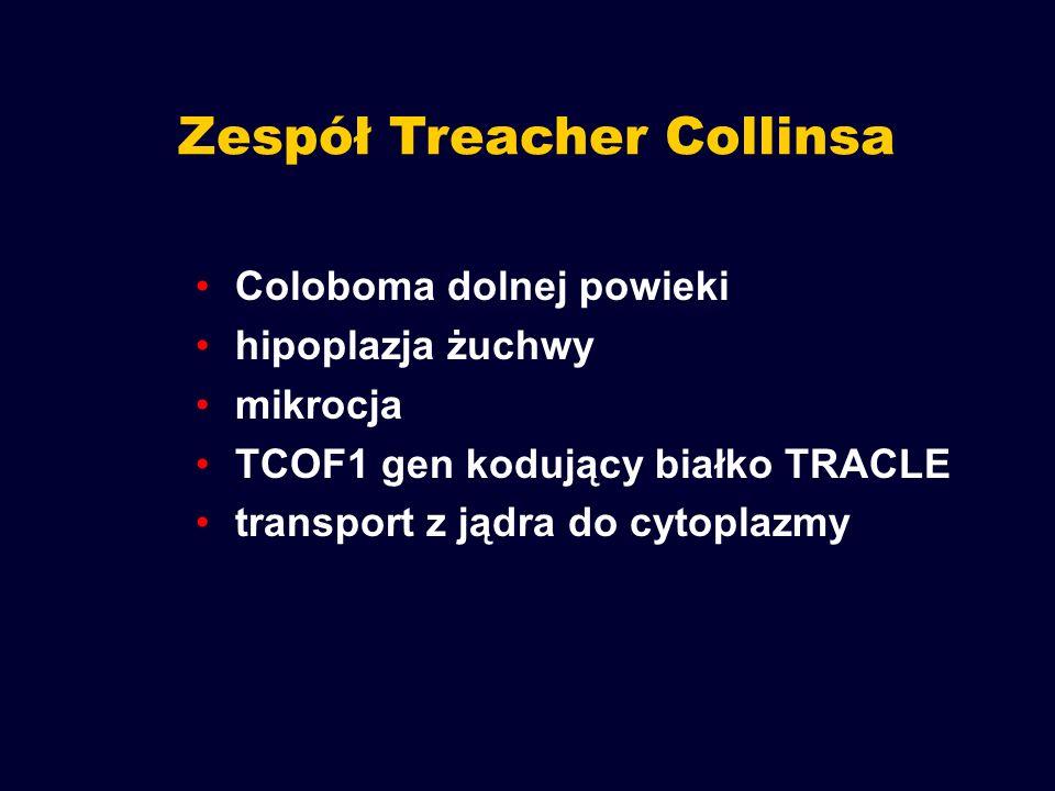 Zespół Treacher Collinsa Coloboma dolnej powieki hipoplazja żuchwy mikrocja TCOF1 gen kodujący białko TRACLE transport z jądra do cytoplazmy