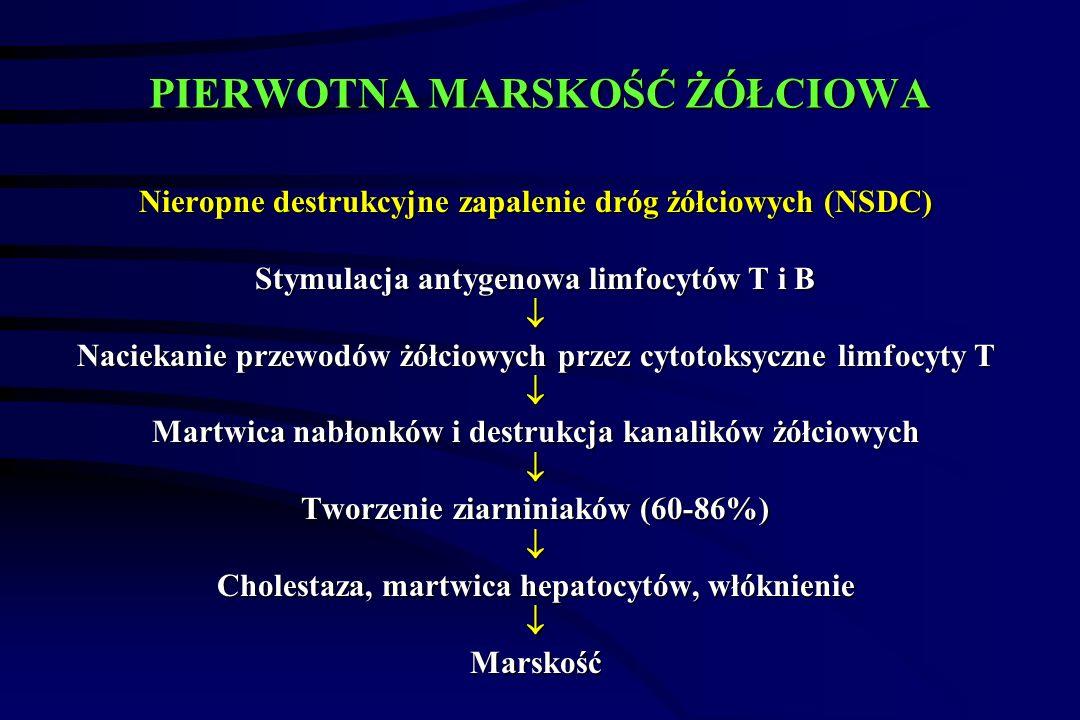 PIERWOTNA MARSKOŚĆ ŻÓŁCIOWA Nieropne destrukcyjne zapalenie dróg żółciowych (NSDC) Stymulacja antygenowa limfocytów T i B  Naciekanie przewodów żółciowych przez cytotoksyczne limfocyty T  Martwica nabłonków i destrukcja kanalików żółciowych  Tworzenie ziarniniaków (60-86%)  Cholestaza, martwica hepatocytów, włóknienie Marskość