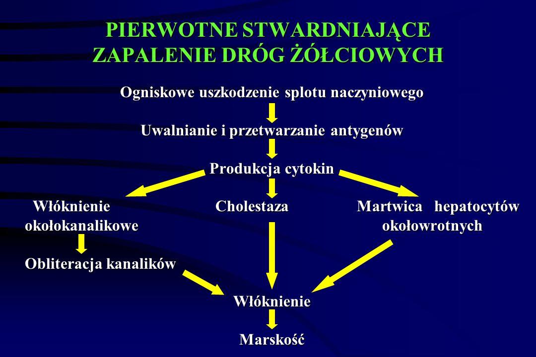 PIERWOTNE STWARDNIAJĄCE ZAPALENIE DRÓG ŻÓŁCIOWYCH  Odcinkowe zapalenie (nacieki okołoprzewodowe składające się głównie z limfocytów T) i zwężenie zewnątrzwątrobowych i/lub wewnątrzwątrobowych dróg żółciowych.