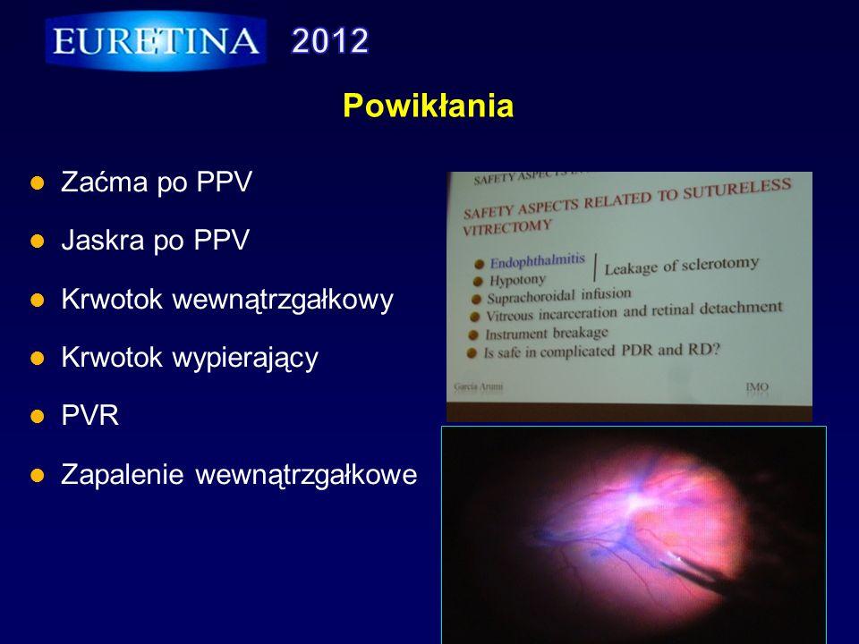 Powikłania Zaćma po PPV Jaskra po PPV Krwotok wewnątrzgałkowy Krwotok wypierający PVR Zapalenie wewnątrzgałkowe