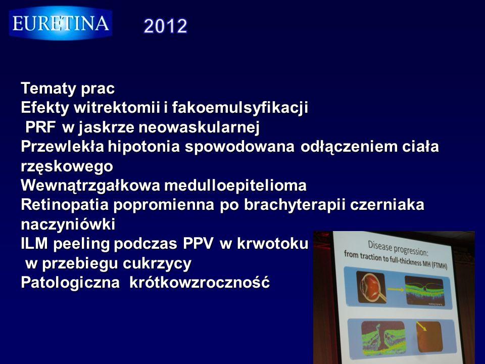 Tematy prac Efekty witrektomii i fakoemulsyfikacji PRF w jaskrze neowaskularnej PRF w jaskrze neowaskularnej Przewlekła hipotonia spowodowana odłączen