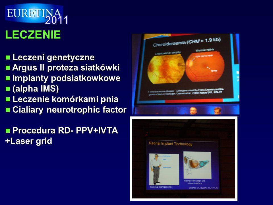 CHIRURGIA Retinotomia Retinotomia IMH - ILM peeling IMH - ILM peeling Przeszczep nabłonka barwnikowego Przeszczep nabłonka barwnikowego Proportional reflux hydrodissection.